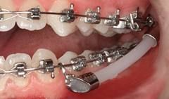 Flex-Developer: Der Flex-Developer wird fest zwischen den Bögen der oberen und unteren Zahnspange angebracht um die Zähne des Oberkiefers nach hinten und die des Unterkiefers nach vorne zu bewegen.