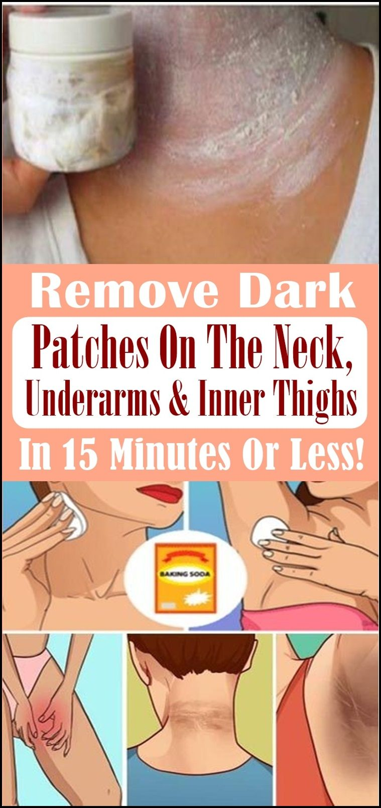 Remove Dark Patches On The Neck, Underarms & Inner Thighs ...