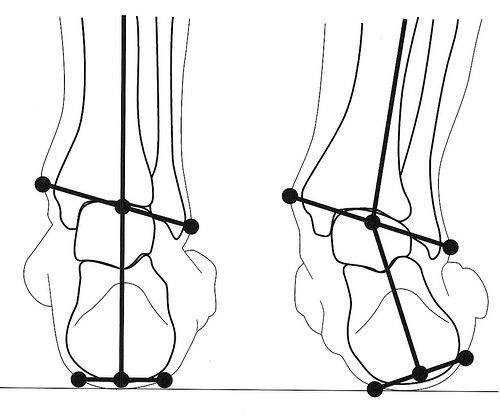 BOWED LEGS  Correcting the center of gravity which is slanted to the outside of the foot. This is typically seen in bowed-legs.