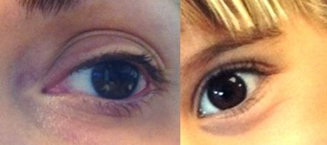 Allergic Shiners Or Black Eyes Allergies And The Inflammation