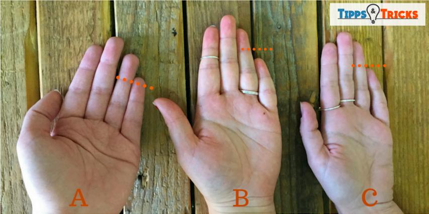 Kleiner Finger Gebrochen Wie Lange Krank