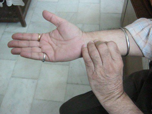Acupressure for Headaches and Migraines | Migraine ...