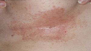 Yeast Infection Treatment Pink Discharge – Best Yeast ... |Pink Yeast Infection
