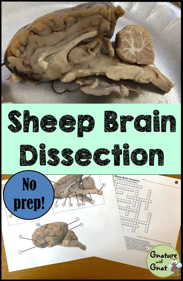 Nervous System: Sheep Brain Dissection   Anatomy, Brain and Students
