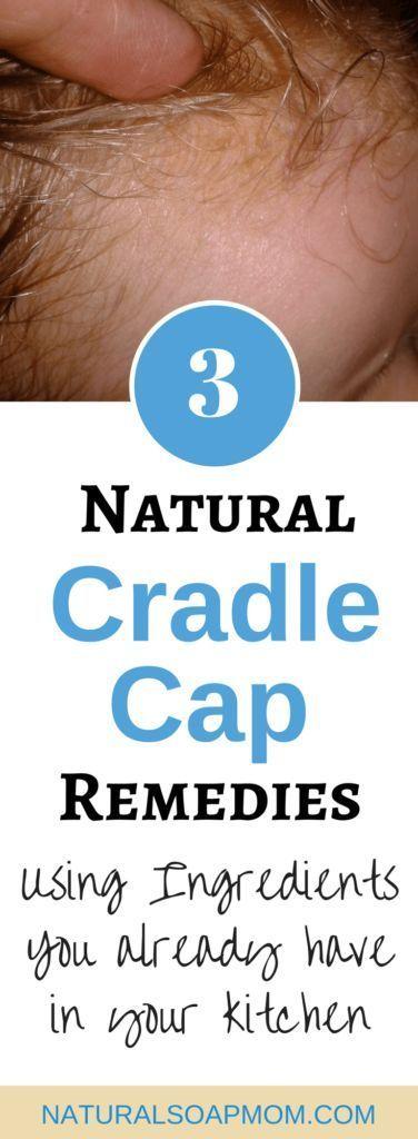 3 Natural Cradle Cap Remedies That Really Work And Fast In 2020 Cradle Cap Remedies Cradle Cap Cradle