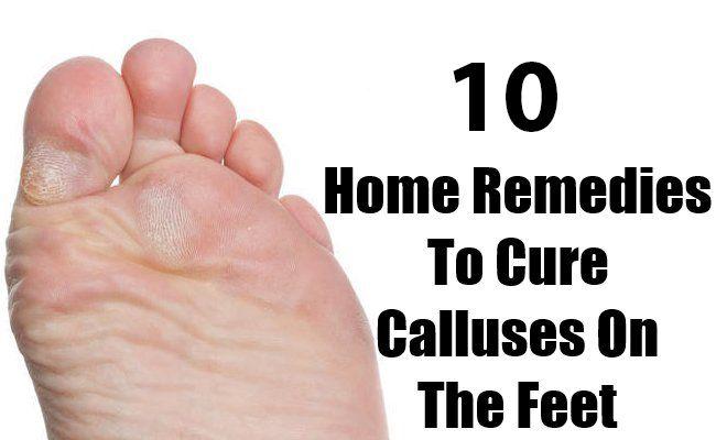 callus treatment at home