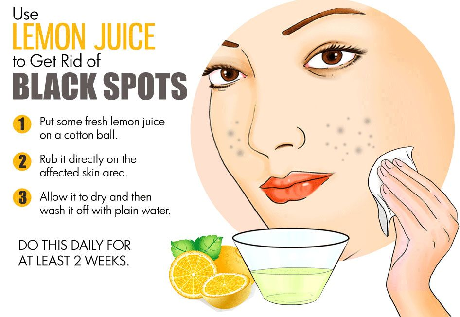 Lemon Juice Can Reduce Dark Spots From Skin Skin Skicare