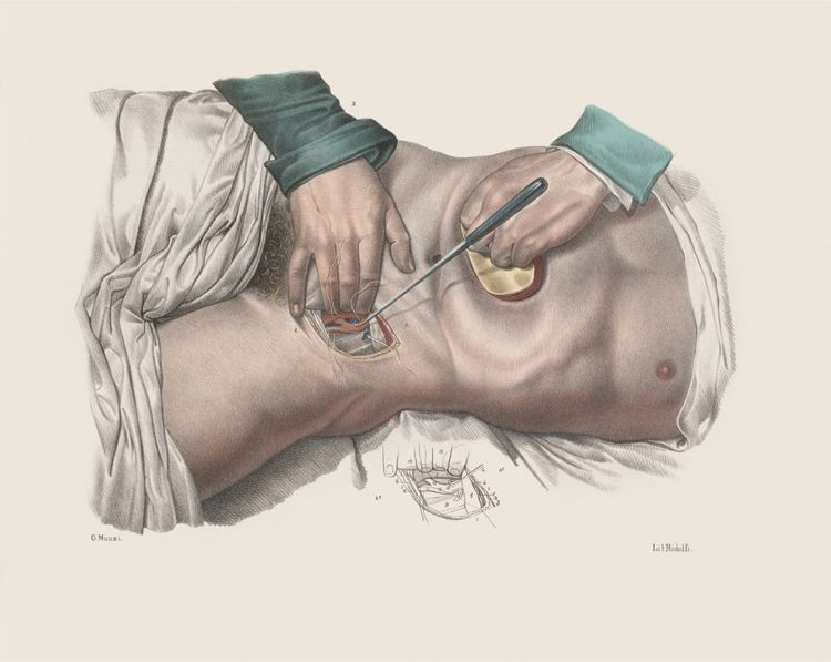 15 Vintage Medical Illustrations Reveal the Horrors of 19th-Century Surgery
