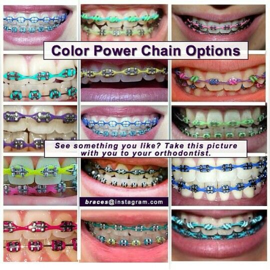 Color Power Chains Braces Colors Cute Braces Colors