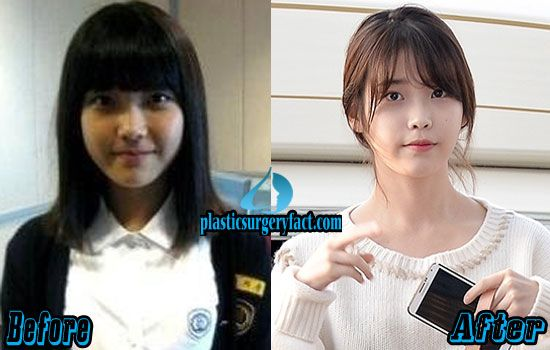 6 Successful Kpop Plastic Surgery 2015 Before And After Com Imagens Funny Kpop