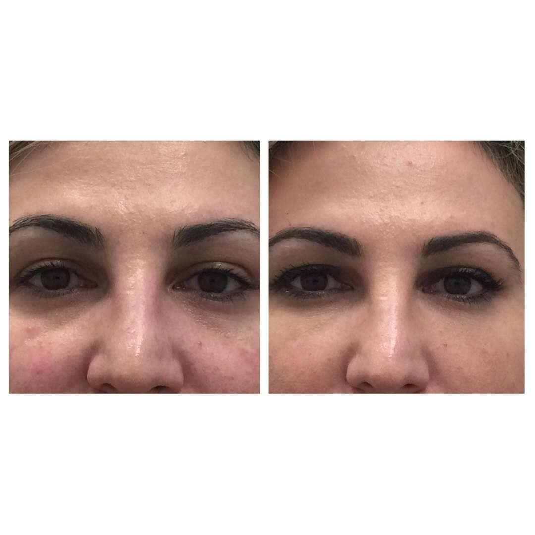 Juvederm Voluma to the under eye area and lid cheek junction. I am loving voluma…