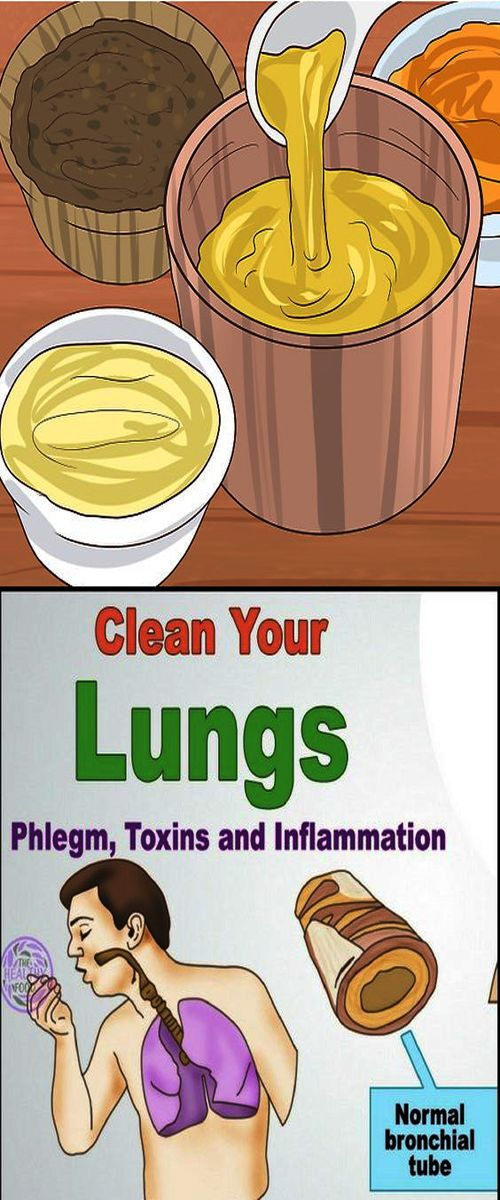 Here Are 10 Home Remedies That Help To Reduce Phlegm From ...