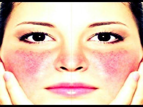 mascarillas PARA tratar LA piel ROSACEA y DISMINUIR su ENROJECIMIENTO - YouTube