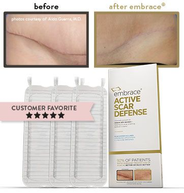 embrace scar therapy. plastic surgery for the body - embrace® scar therapy embrace l