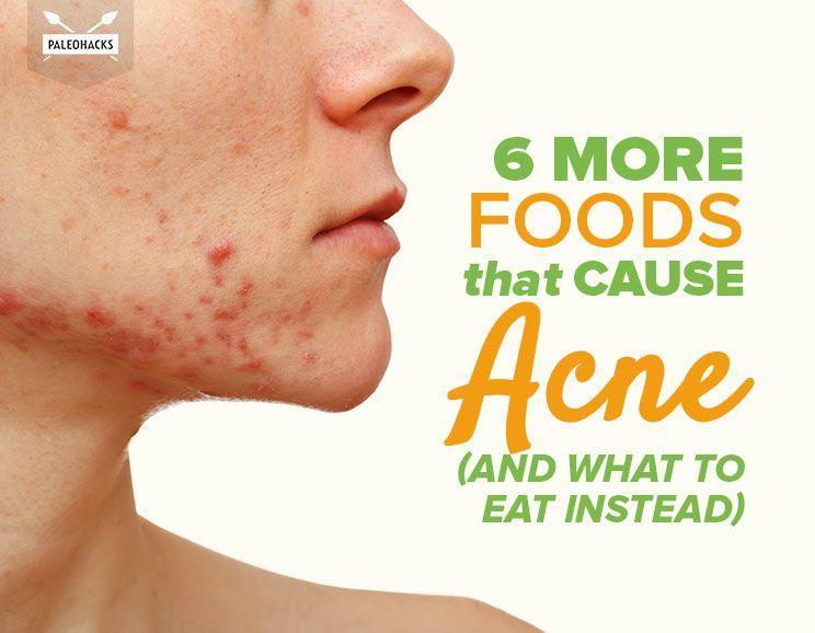 Pin On Natural Hair Skin Nail Health