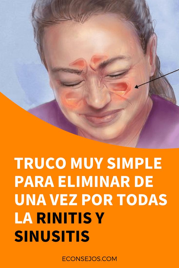 Remedio Casero Eficaz Contra La Rinitis Y Sinusitis Sinusitis Remedios Caseros Infografia Salud Remedios