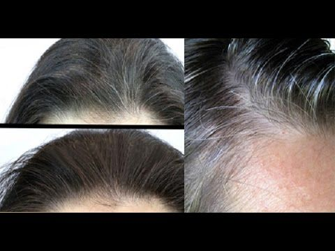 Coconut Oil And Lemon Mixture - It Turns Gray Hair Back To ...