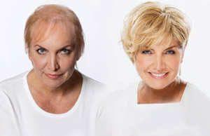 Fryzury Krótkie Rzadkie Włosy Szukaj W Google Mama W
