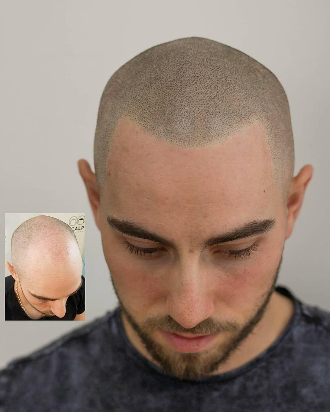 19+ Haircut close to scalp ideas in 2021
