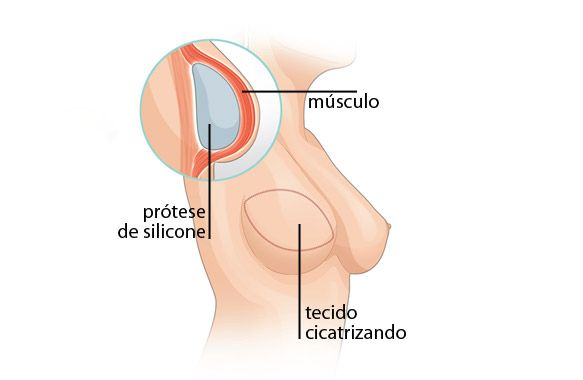 Remoção do músculo e da pele das costas para a reparação mamária não prejudica os movimentos dos braços