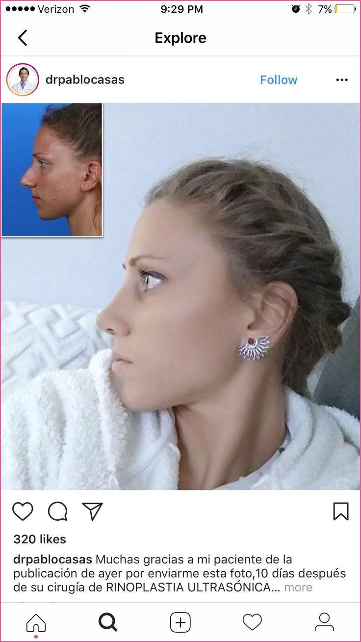 Welche Frisur Bei Langer Nase Nose Plastic Surgery Rhinoplasty Nose Surgery Rhinoplasty