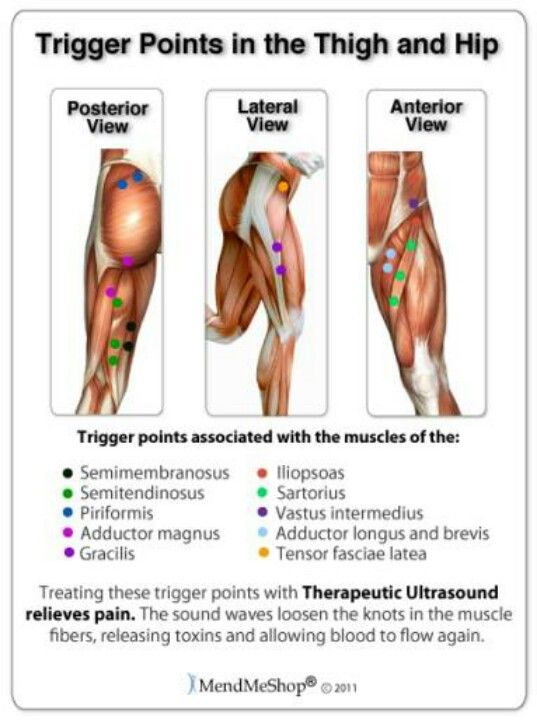 Trigger Points In The Thigh And Hip Trigger Points Massage Therapy Trigger Point Therapy