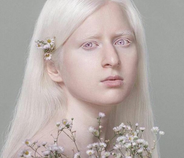 Модели альбиносы фото параметры фотомоделей