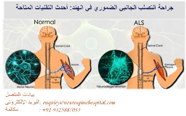 كل شيء عن علاج مرض التصلب الجانبي الضموري Als في الهند Https Bit Ly 331di6k Motor Neuron Spine Surgery Spinal Cord
