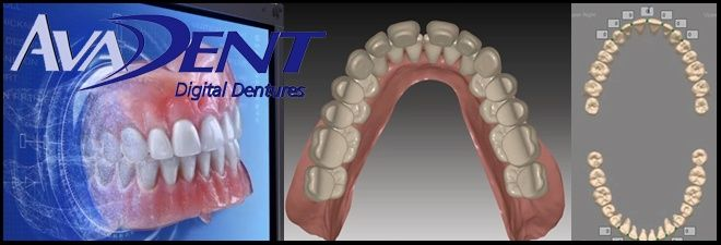 With new AvaDent denture technology, our board certified prosthodontists can provide patients who choose dentures with a smile solution light years better than a decade ago.