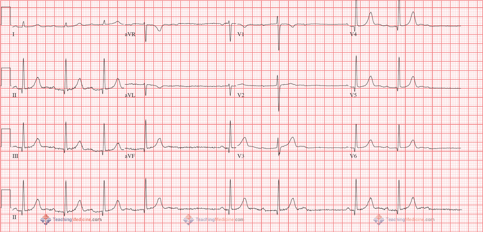 Image result for 2nd degree type 1 heart block 12 lead ecg
