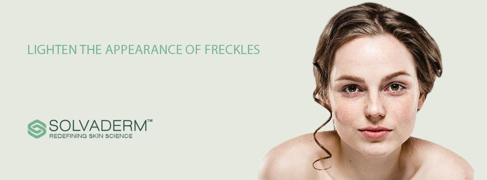 Why Freckles Mostly Appear on Fair Skin and How to Prevent Getting Them