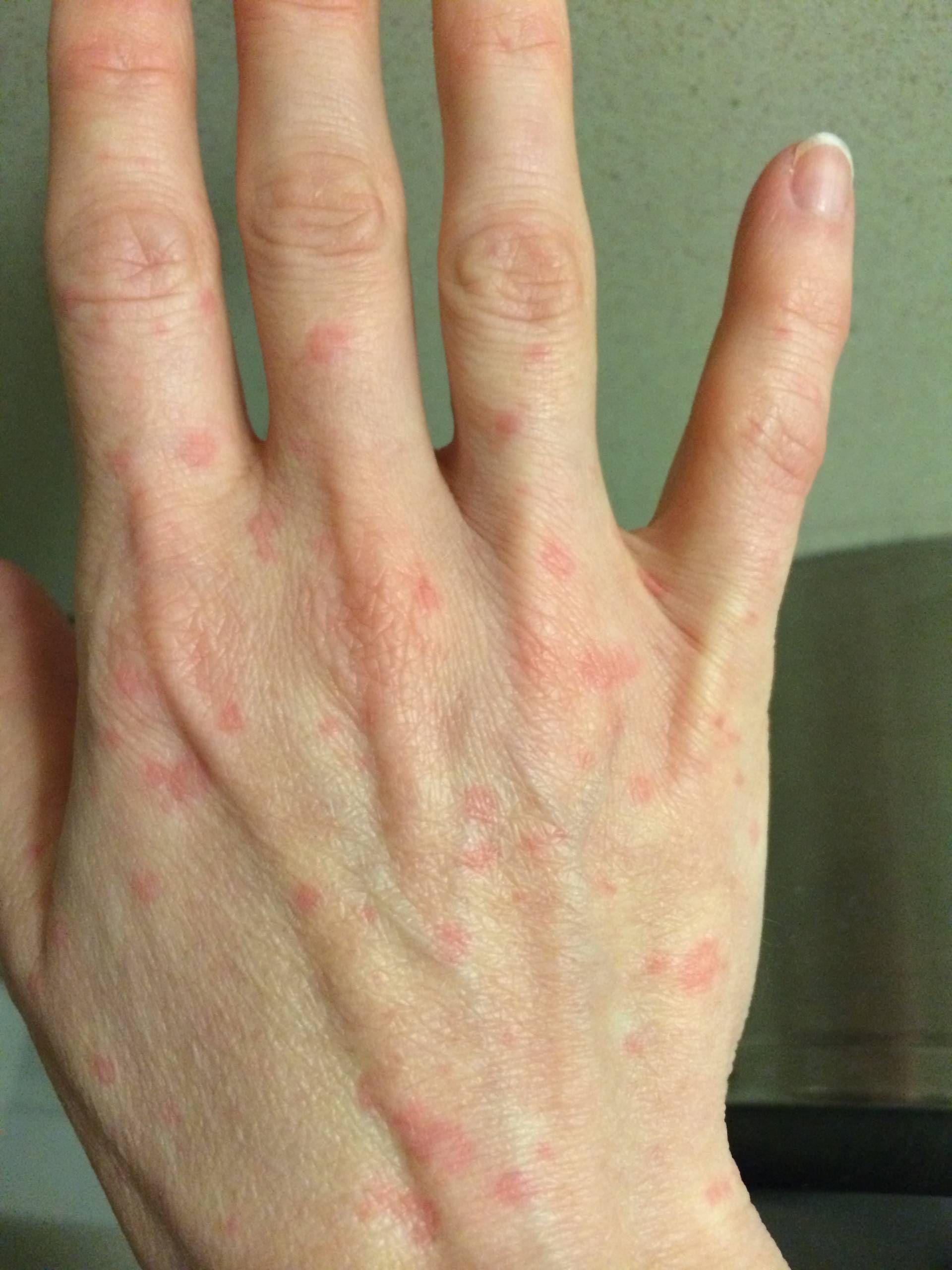 Idiopathic urticaria: causes, symptoms, diagnosis and treatment 16