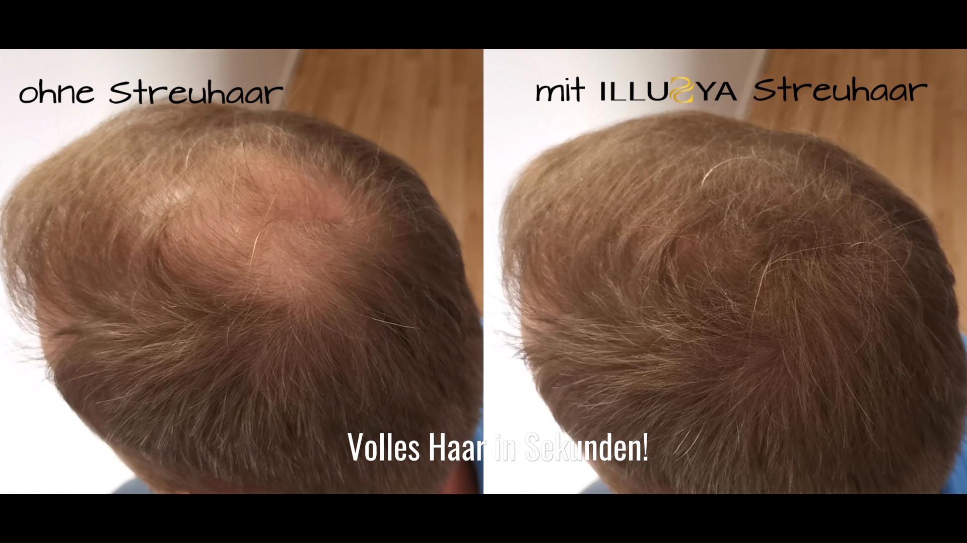 Sie Leiden Unter Haarausfall Oder Verfugen Uber Lichtes Haar Verdichten Sie Einfach Ihr Lichtes Haar Mit Illusya Streuhaar Bis Zur Nachsten Haarwasche Video Haare