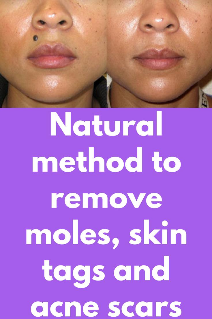 Pin On Remove Raised Moles