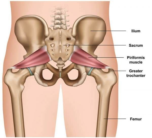 Here's how to heal from piriformis syndrome quickly. This ...