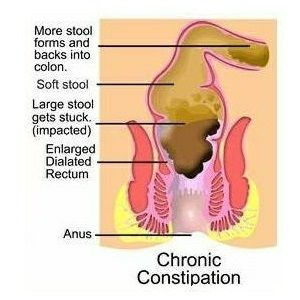 Natural Laxatives Home Remedies For Constipation Stomach