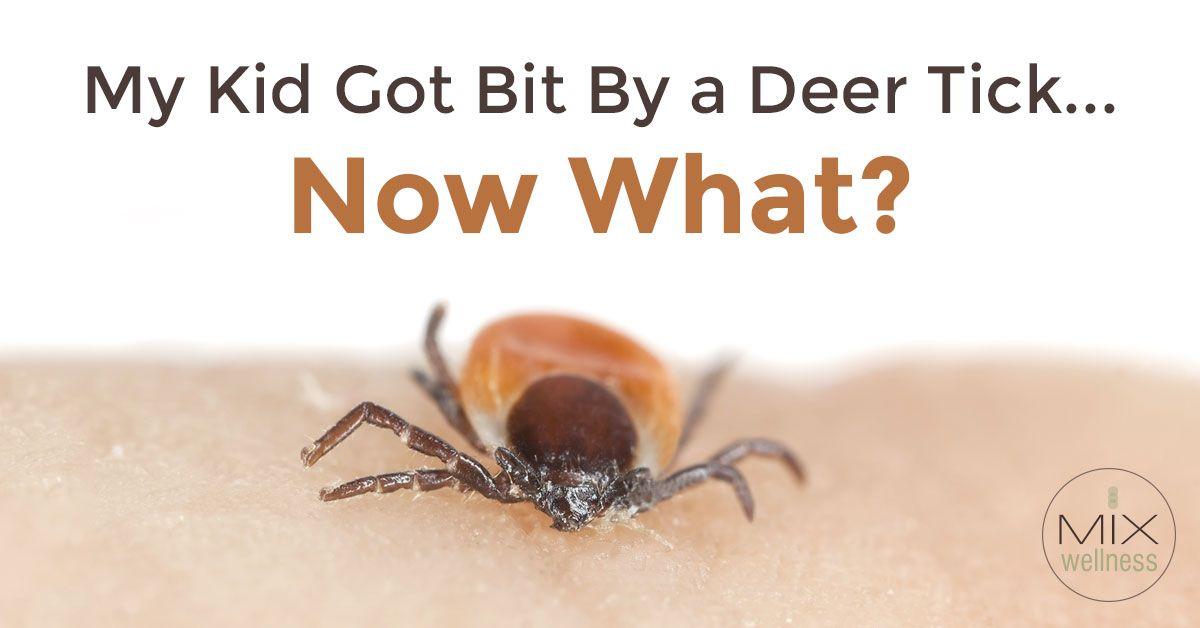 My Kid Has A Deer Tick Bite...Now What Deer tick bite