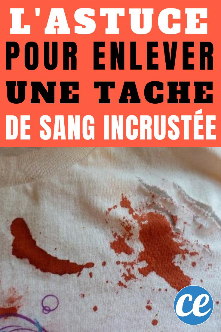 Nettoyer Une Tache De Sang : nettoyer, tache, L'Astuce, Marche, Enlever, Tache, Incrustée., Sang,, Nettoyer