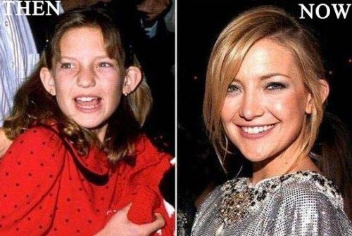 kate hudson nose job photo before and after celebrity surgery in