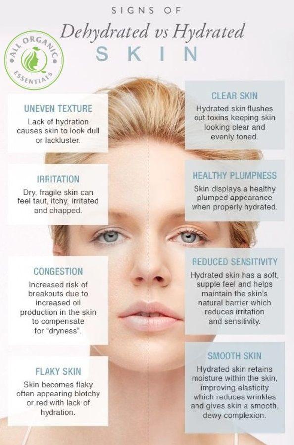 dehydrated skin symptoms