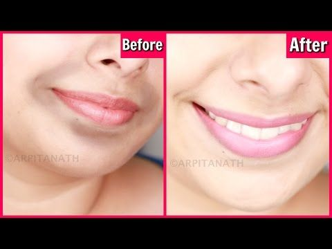 Remove Dark Black Patches Around Mouth In 15 Minutes Get Rid