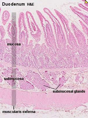 """Duodenum : Low Power. Feature : """"packages"""" of glandular ..."""