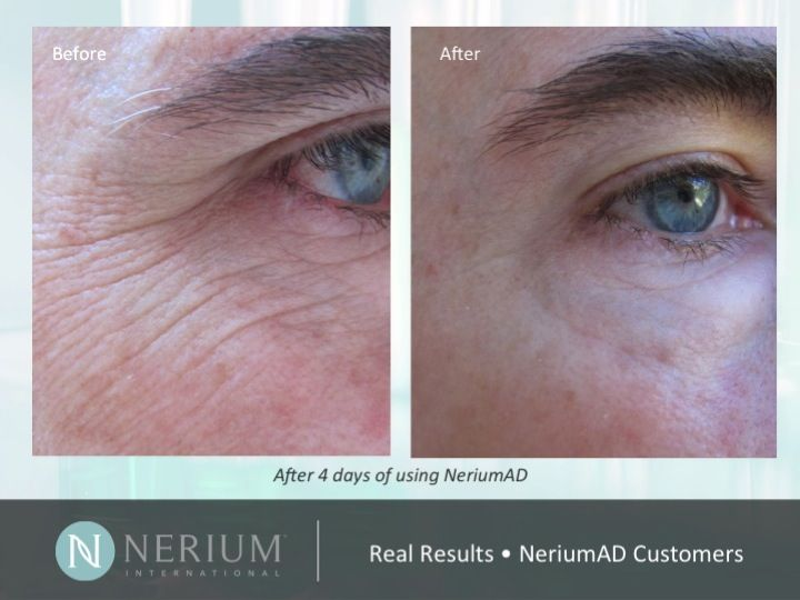 NeriumAD is Gluten Free! Learn more about the Nerium difference at http://www.tamarapatzer.theneriumlook.com/