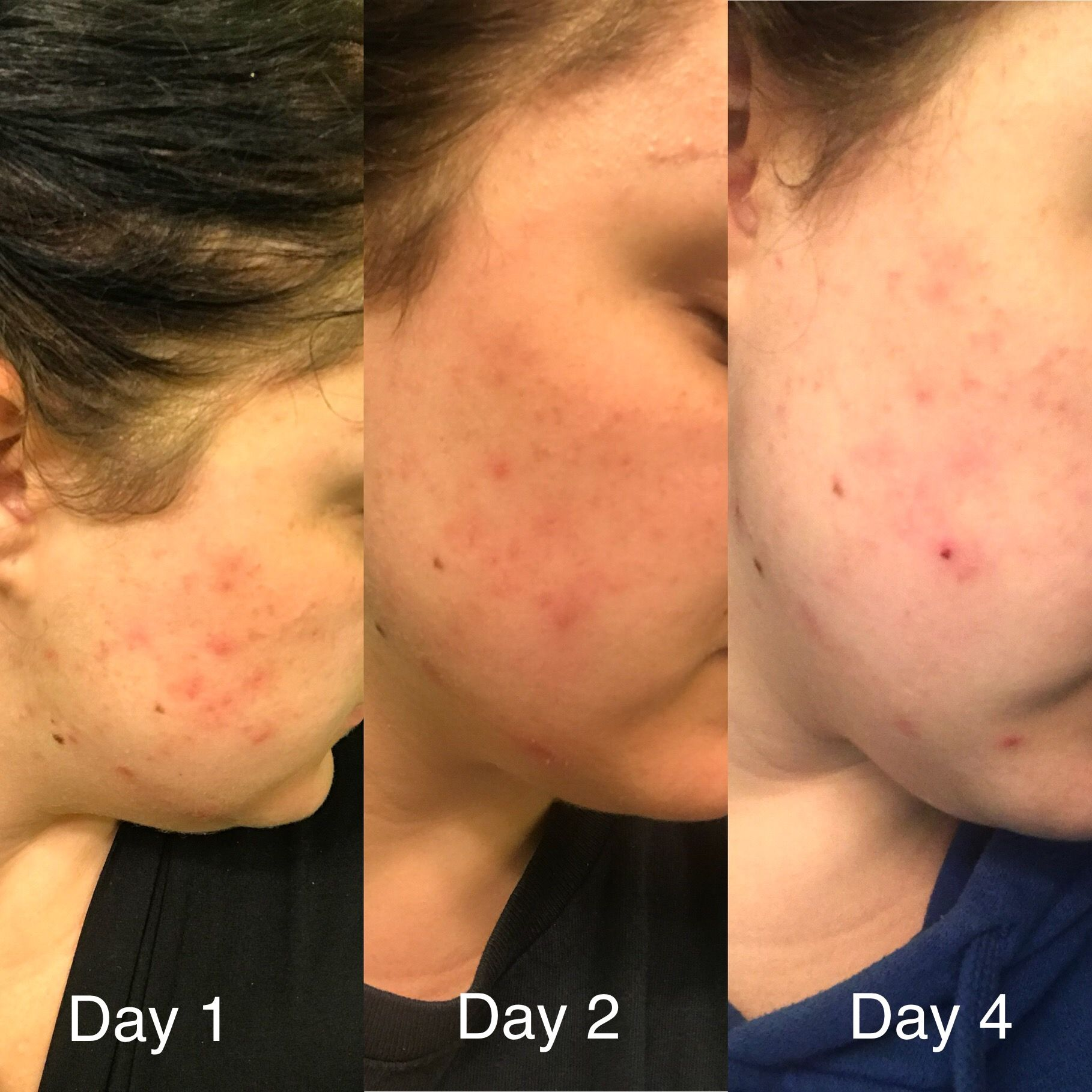 Progress Photos Of My Cystic Acne I Used Limelight By Alcone Skincare Products Morning Routine Dream Clean Skin Ther Skin Therapist Skin Care Skin Polish