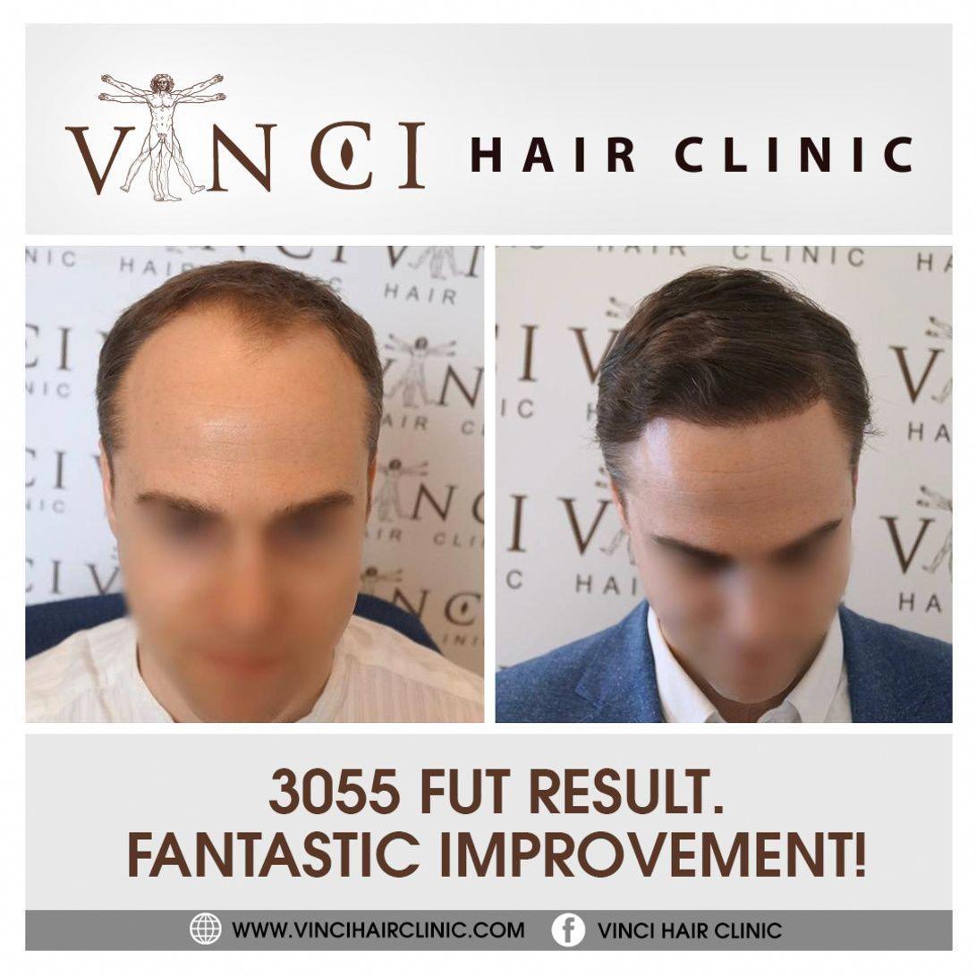 MalePatternBaldness Hair clinic, Male pattern baldness