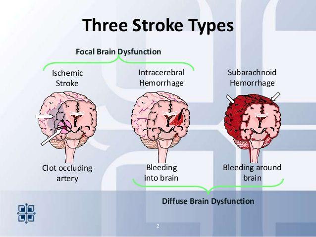 Types Of Strokes 2013 Stroke Areyouready Nursing