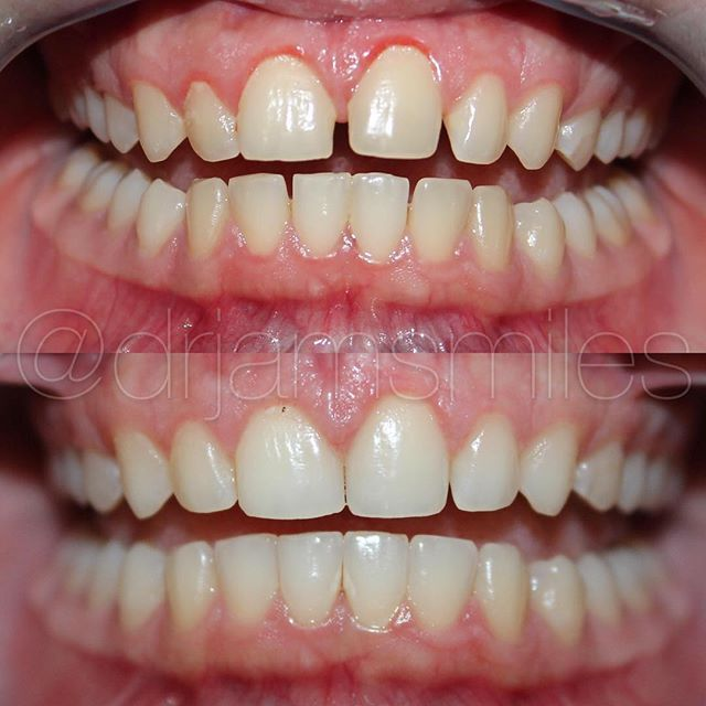What can invisalign do for you come visit my office and see for what can invisalign do for you come visit my office and see for yourself scheduling info in bio if you would like to inquir solutioingenieria Choice Image