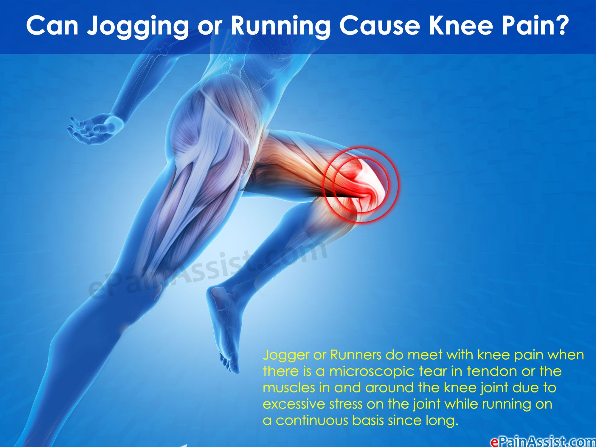 Knee pain diagnosis test - Read How Knee Pain Is Caused From Jogging Or Running Read Its Symptoms Treatment