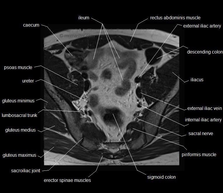 Mri Pelvis Anatomy Free Male Pelvis Axial Anatomy Mri Pelvis