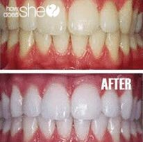 4 Ways to Whiten Your Pearlies! (Teeth)